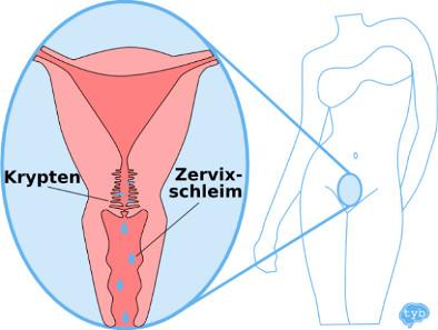 Ausfluss Krypten Gebärmutterhals
