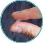 Zervixschleim-trüb