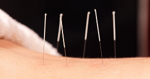 Akktupunktur