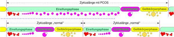 PCOS Zykluslänge - verlängerte Eireifung