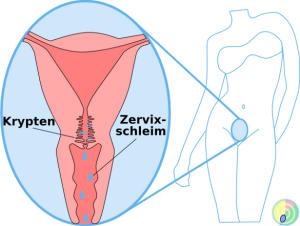 Zervixschleim Gebärmutterhals