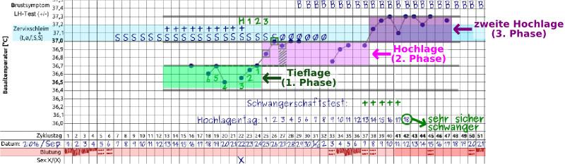 Triphasische Temperaturkurve - Schwangerschaftszyklus
