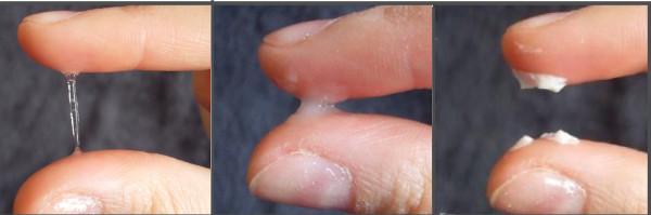 Zervixschleim vor dem Eisprung