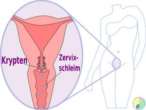 Zervixschleim Krypten